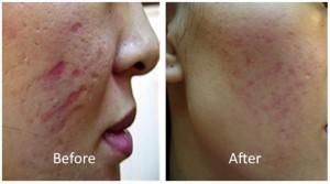 dermaroller before and after