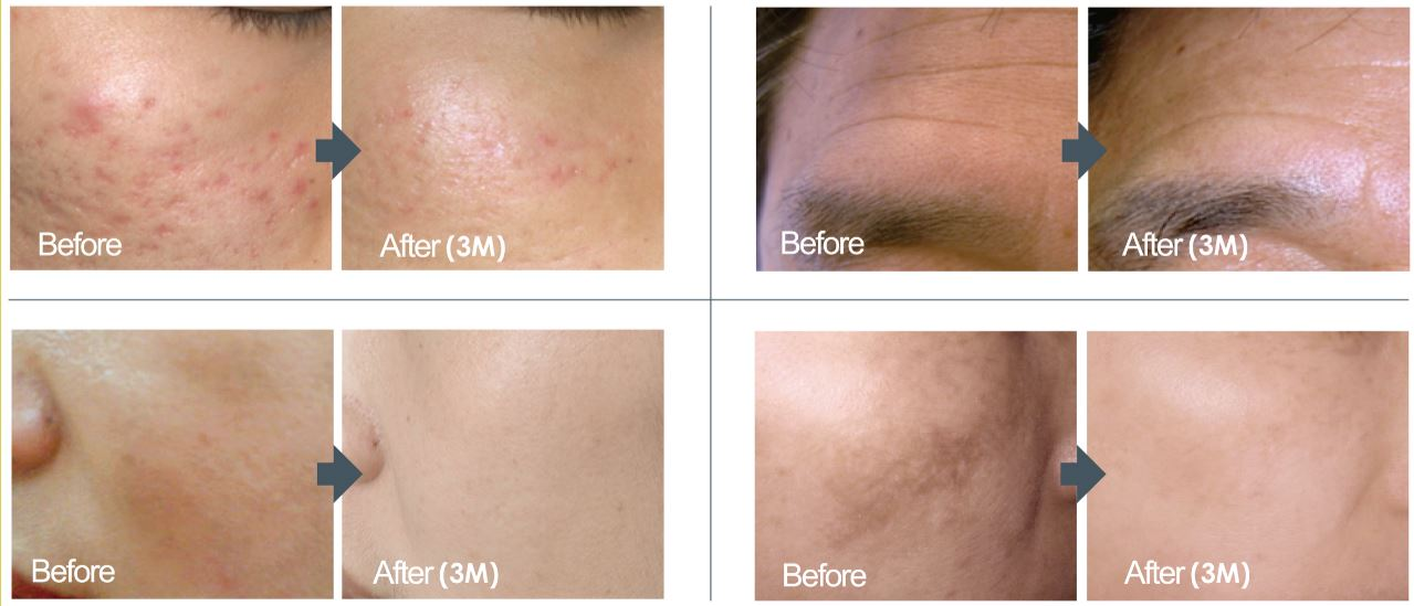 dermaroller facial before and afters