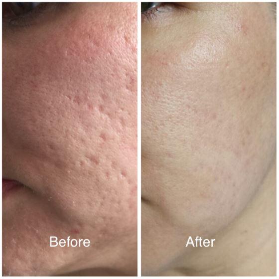 facial results